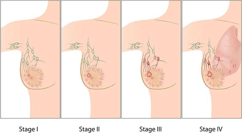Cancer-Stages-Success-Rates