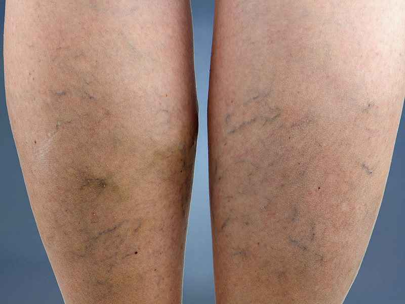 Varicose-Veins-diagnosis
