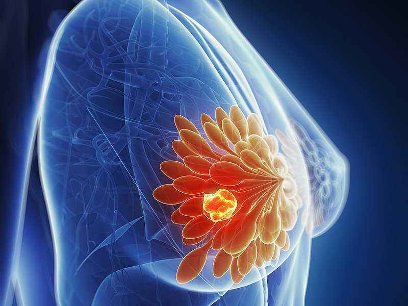 breast_cancer_signs_